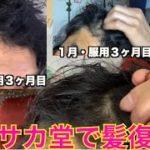 【ハゲ日記】ハゲ動画から1ヶ月!毛復活??