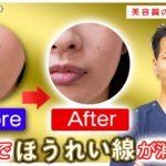 【施術の流れ】美容鍼でほうれい線を消す「問診・施術・セルフケア」【二子玉川 鍼灸整体院WATO】