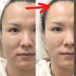 【激変】噂のHIFUをメンズが受けてみた!美容皮膚科で肌メンテナンス!