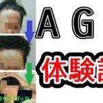 【AGA治療】1年間の経過を20枚の写真で解説します。【体験談】【AGA治療をやめてみて7ヶ月経過】【AGAスキンクリニック】【オオサカ堂】