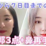 【美容整形VLOG】輪郭3点(エラ・頬骨・前顎)と鼻 ~手術から7日目までの経過の様子