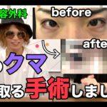 【整形】湘南美容外科で目のクマを取る手術をしたら劇的に変わった!