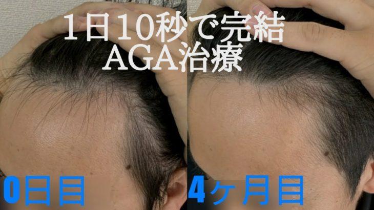 1日10秒で完結!!AGA治療4ヶ月経過の結果を報告します。【オオサカ堂】【ミノキシジル】【フィナステリド】【個人輸入】【副作用】【多毛症】