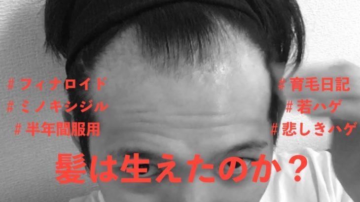 ハゲだけど、色んな髪型にしてえ!@1日目〜6ヶ月目