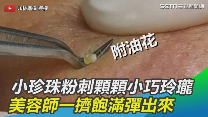 小珍珠粉刺顆顆小巧玲瓏 美容師一擠飽滿彈出來|三立新聞網SETN.com