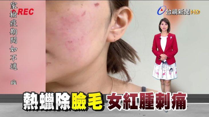 臉部就醫才知灼傷 控美容師處理態度消極